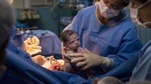 Image principale de l'article Un bébé naissant a l'air bête et devient viral