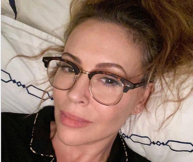 Image principale de l'article Alyssa Milano perd ses cheveux à cause de la COVID