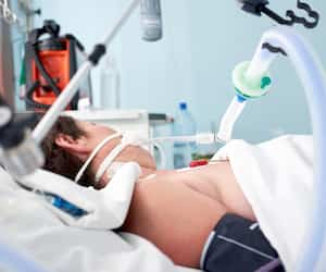 Intubated woman with ventilator assisted breathing due to flu or coronavirus pneumonia