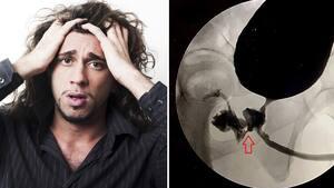 Image principale de l'article Il éjacule du rectum et défèque du pénis