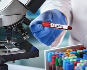 microbiologist with a tube of blood analyzed under a microscope and contaminated by Coronavirus with label covid-19 /doctor in the laboratory with a blood tube for analysis and sampling of Coronavirus