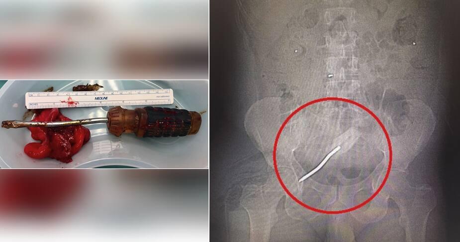 Un Floridien de 46 ans s'est inséré un tournevis dans le rectum