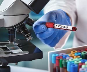 microbiologist with a tube of blood analyzed under a microscope and contaminated by Coronavirus with label covid-19