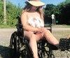 Pour marquer les trois ans de l'accident, Tina Adams a publié des photos montrant ses cicatrices.