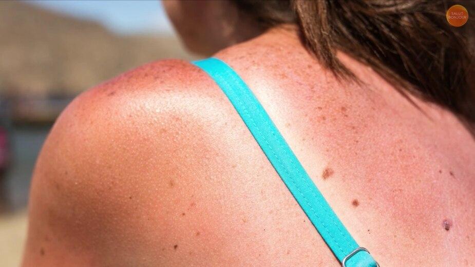 6 astuces pour soulager les coups de soleil