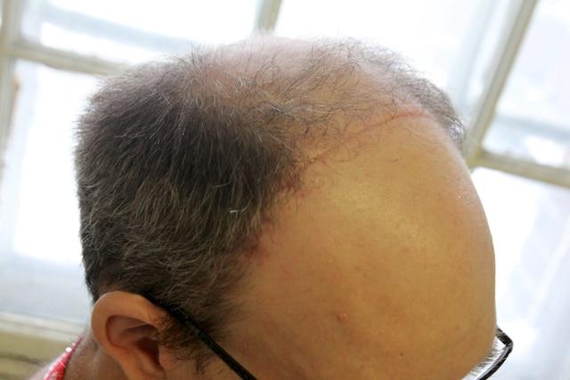 Depuis son agression, l'homme battu au métro Angrignon a retrouvé le courage de prendre le métro, mais une cicatrice lui traverse toujours la tête d'une oreille à l'autre.