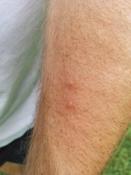 Le contact avec la sève provoque des lésions sur la peau.