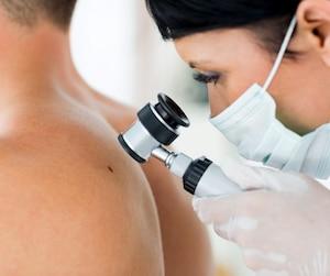 Près du tiers des dermatologistes du régime public ne prennent plus de nouveaux patients, ce qui semble préoccupant compte tenu de la forte progression des cancers de la peau.