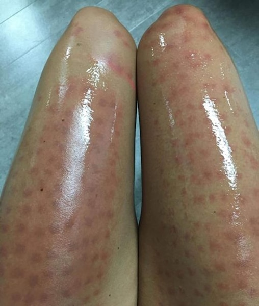 Photos Laser Hair Removal That Turns Into A Nightmare Web24 News