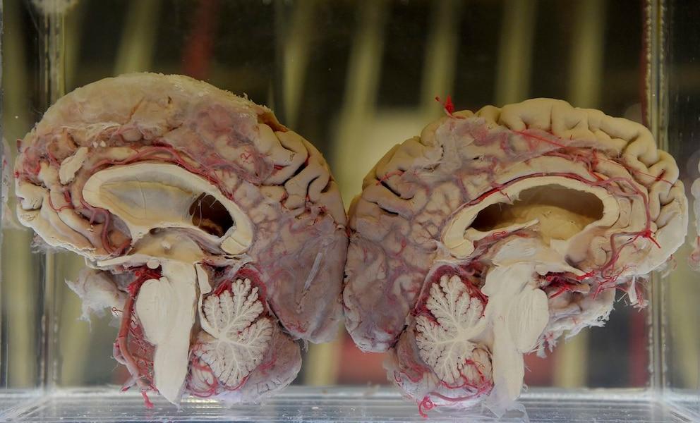 Cerveau datant de Montréal