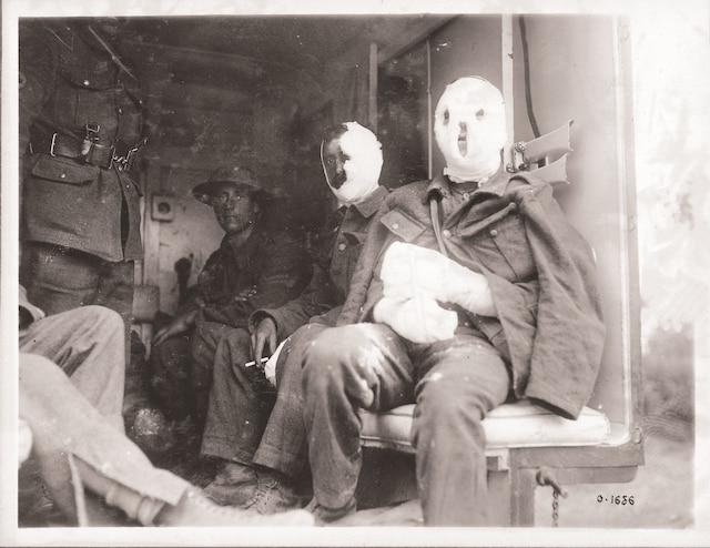 Des Canadiens blessés sont transportés vers des hôpitaux en Grande-Bretagne, en juillet 1917.