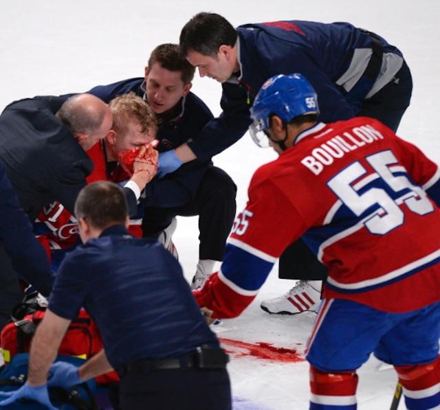 (81) Lars Eller qui s'est blessé au visage.