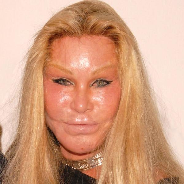 Lindsay commence à ressembler à la CatWoman JocelynWildenstein, surnommée ainsi en raison de son apparence féline.