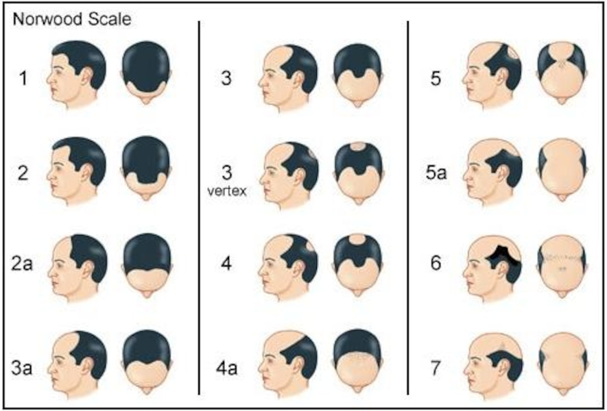 Le silicium de la chute des cheveux