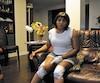 Godeline Kamta peine à se déplacer en raison des blessures causées par les morsures.