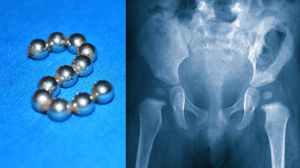 Un ado de 13 ans s'insère 29 billes magnétiques dans le pénis «par curiosité» et doit être opéré à la vessie