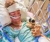 Mathis Langlois, 13 ans, photographié après une greffe de peau dans un hôpital de Québec, à la suite d'un accident de travail survenu mardi dernier à Saint-Just-de-Bretenières, près de Montmagny.