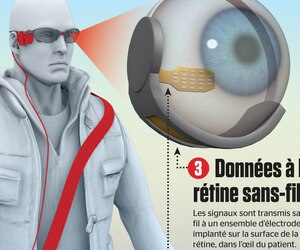 En 5 minute |Implant oculaire