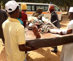 Un des 46 blessés durant l'attentat-suicide de Potiskum, dimanche, commis par deux femmes kamikazes.