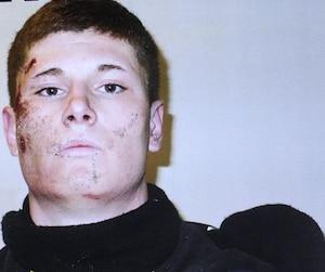 Alexis Vadeboncoeur avait le visage tuméfié après son arrestation en février 2013. Au moment des faits, il était armé d'un pistolet.