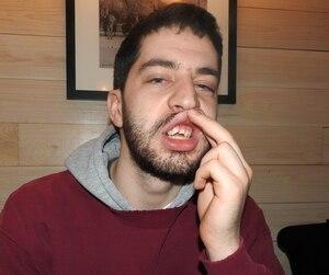 Daniel Slapcoff, étudiant en cinéma à l'Université Concordia, montre ses deux dents qui ont été brisées quand il a été atteint par le bouclier d'un policier lors du rassemblement des opposants à une motion contre l'islamophobie samedi à Montréal.