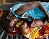 Malnutrition pauvreté tiers-monde