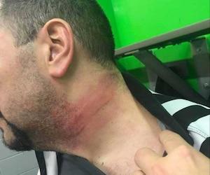 Benjamin Paradis a montré les résultats de l'agression sur les réseaux sociaux. On peut voir que son cou est enflé et porte une marque.