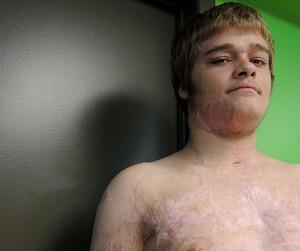 Michael Fitzgerald a été brûlé sur plus de 45% de son corps en plus d'avoir été poignardé.