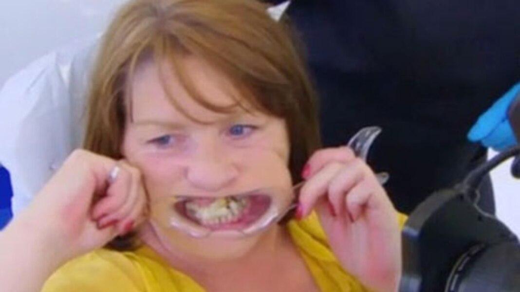 effray e par les dentistes elle fixe ses dents la colle forte tva nouvelles. Black Bedroom Furniture Sets. Home Design Ideas