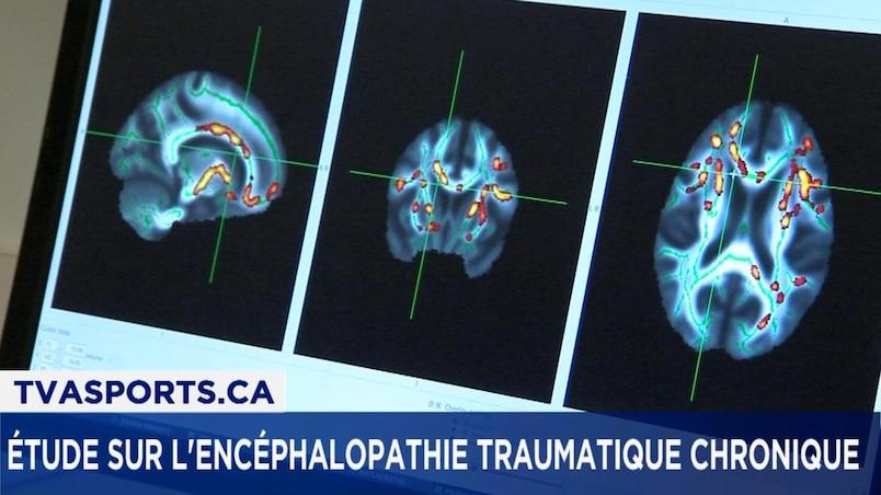 Commotions cérébrales : le message ne passe pas