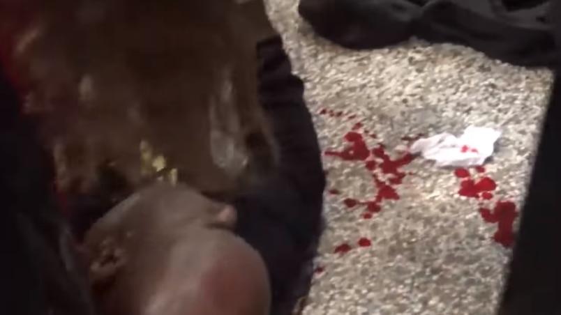 Un combat annulé après l'agression d'un entraîneur à la pesée