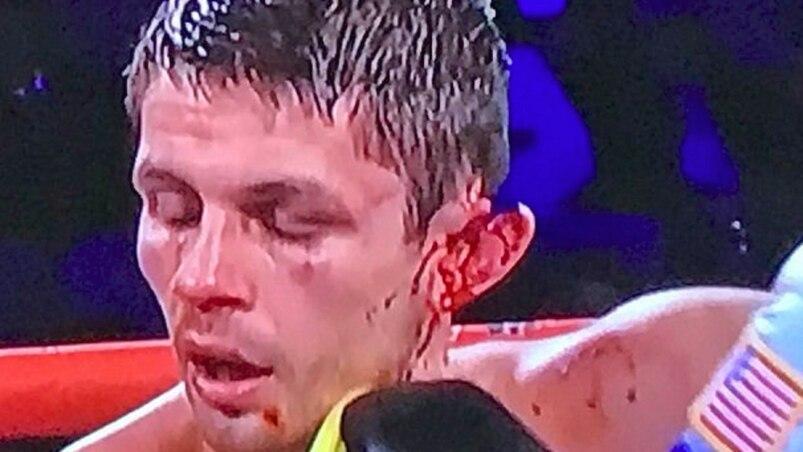 Un boxeur se fait déchirer une oreille