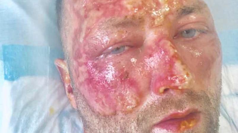 Un ancien de la LNH victime d'une épouvantable malchance
