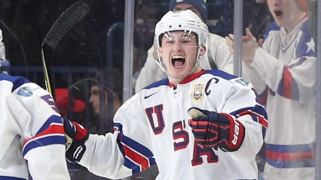 SPO-HKO-HKI-RUSSIA-VS-UNITED-STATES:-QUARTERFINAL-2018-IIHF-WO