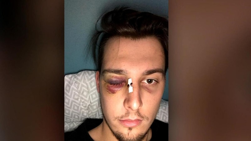 Une scène d'une déplorable violence au hockey senior AAA